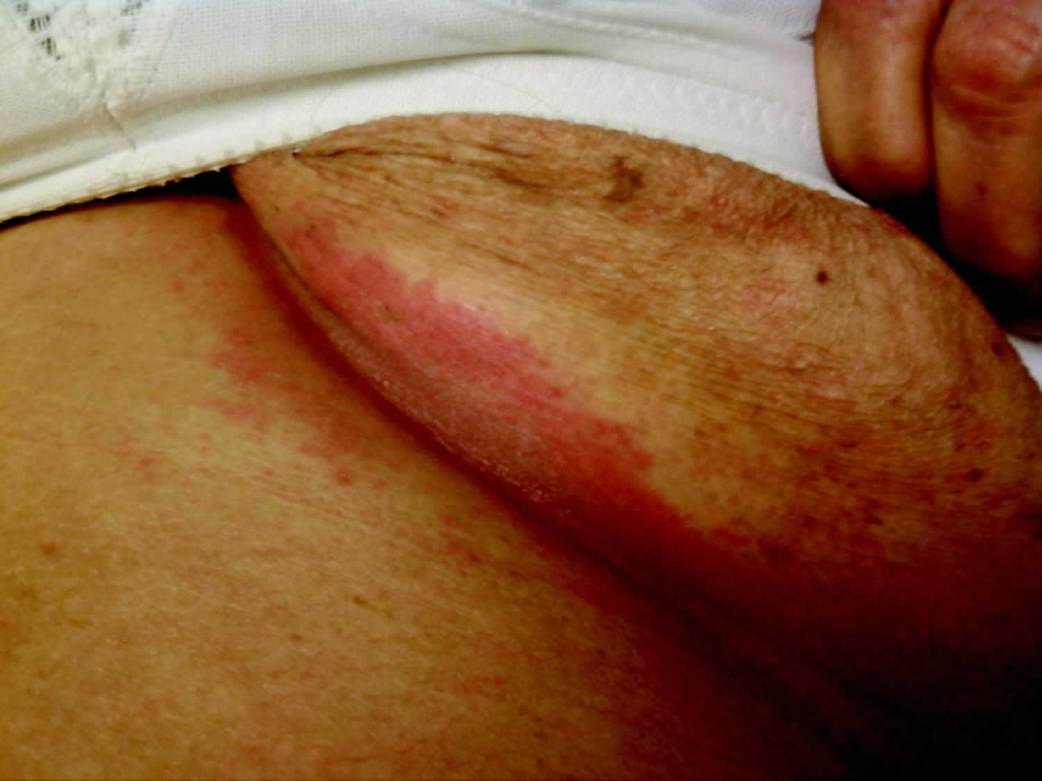 gluteal cleft psoriasis treatment)