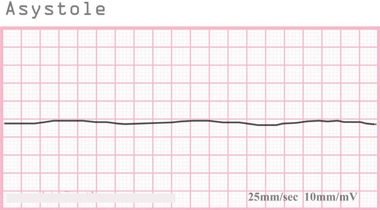 Asystole ECG