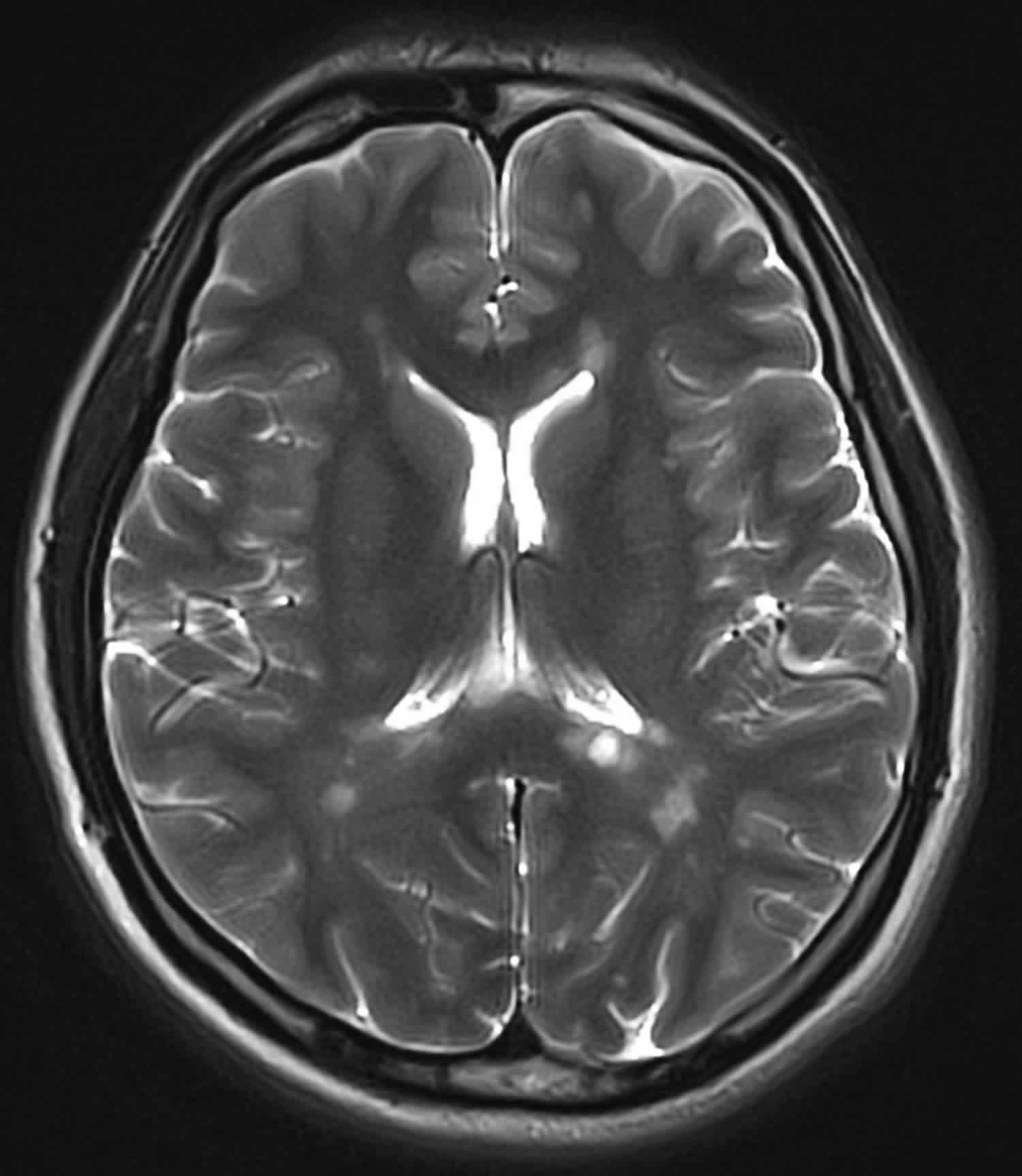 multiple sclerosis demyelination MRI