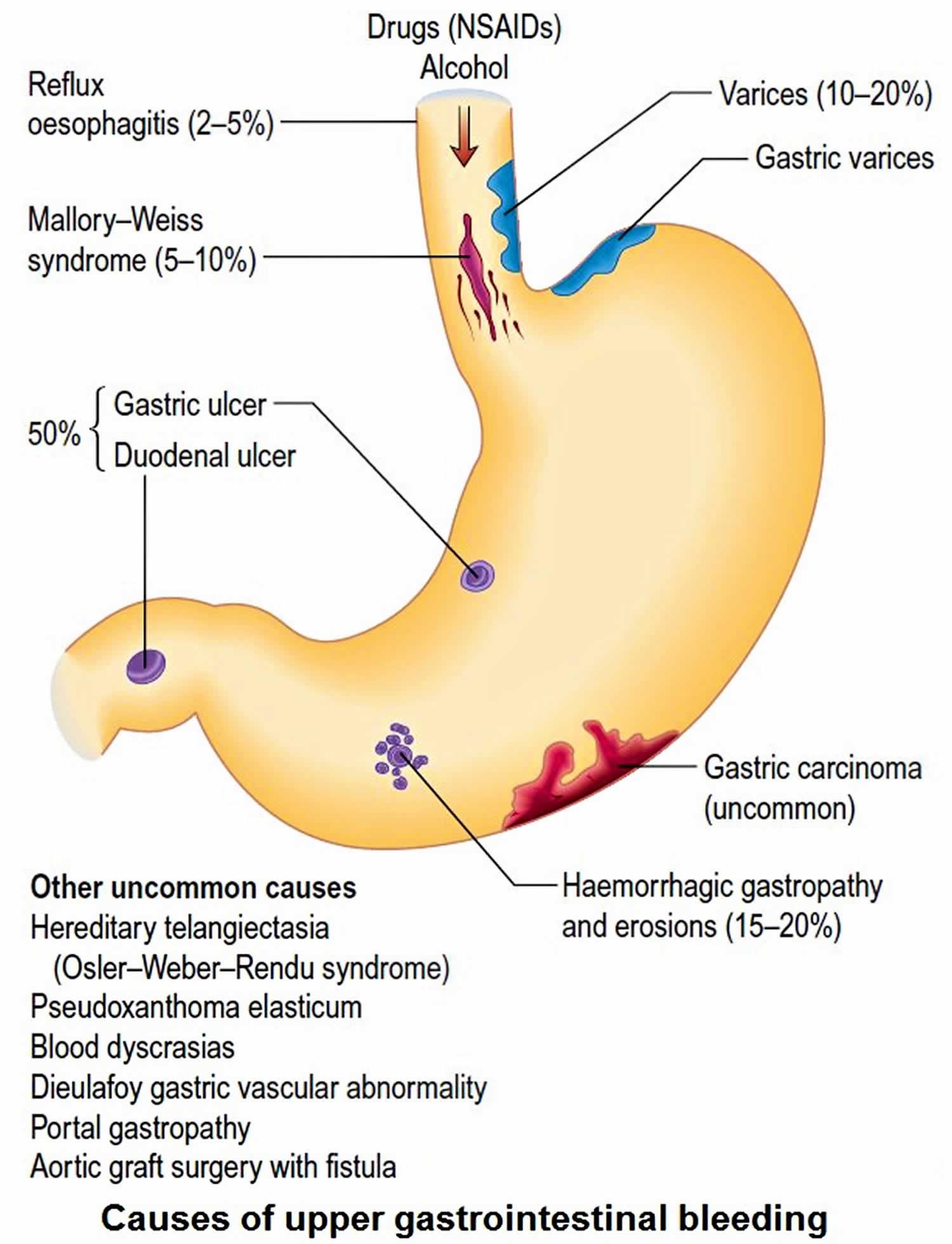 Melena Stool Definition Causes Symptoms Diagnosis Melena Treatment