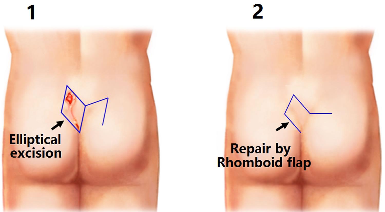 Pilonidal sinus surgery