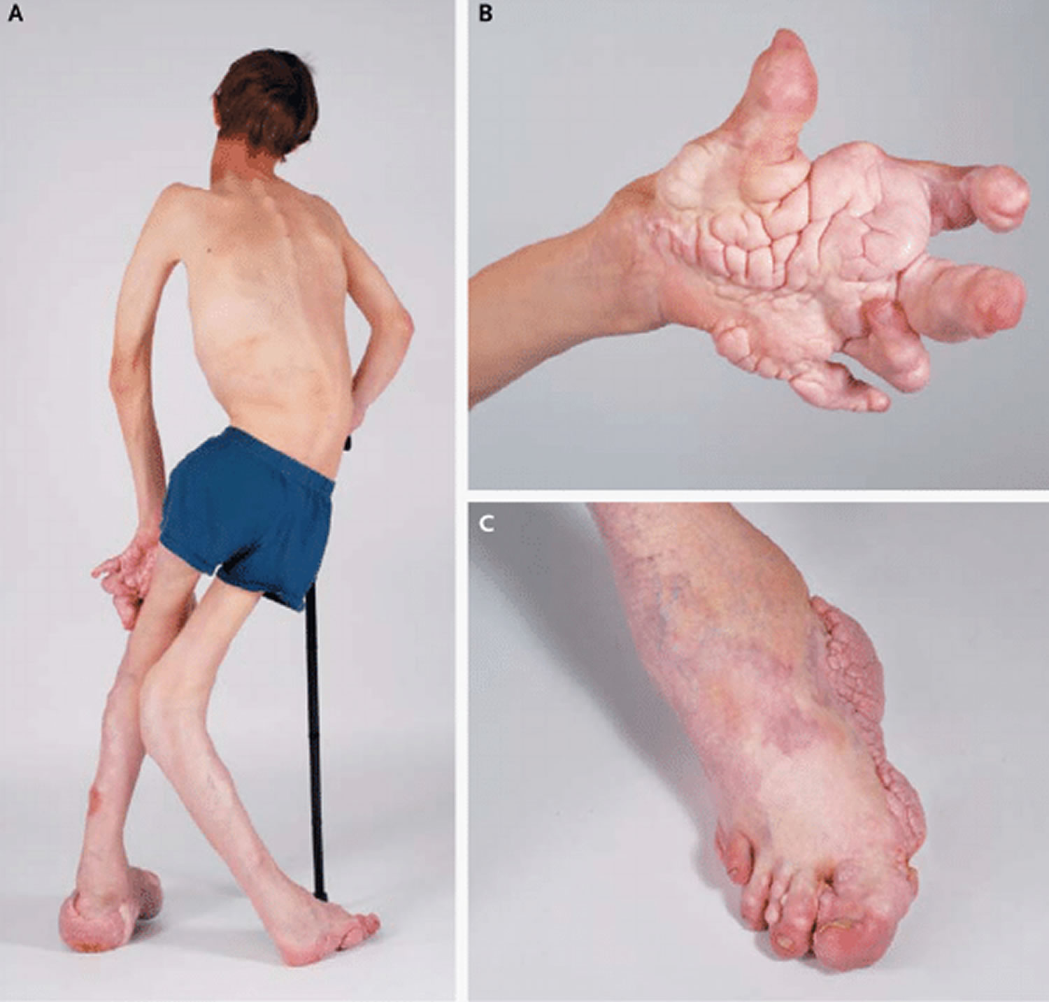 Proteus Syndrome in a 12-Year-Old Boy