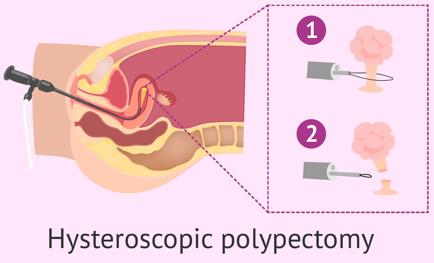 100+ Cervical Polypectomy Cpt Code – yasminroohi