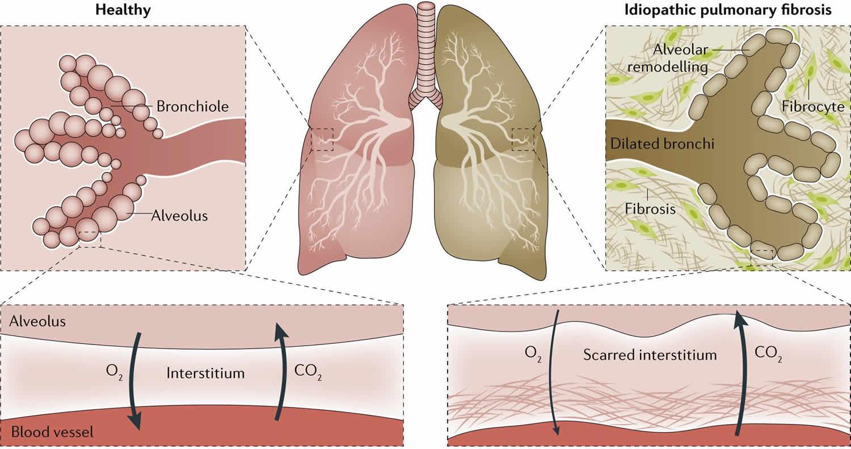 idiopathic pulmonary fibrosis