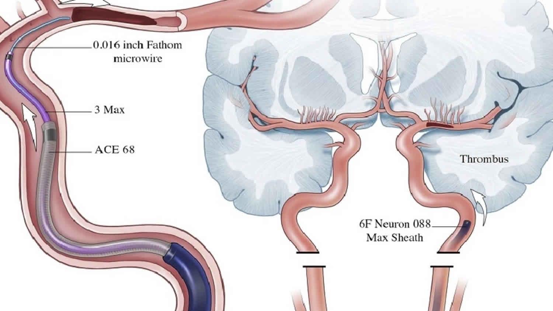 thrombectomy